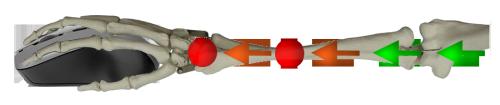 torsion poignet